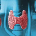 Conheça os sintomas do hipotireoidismo